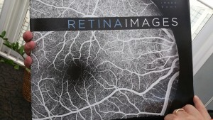 Retima Images, an atlas by Dr Huang